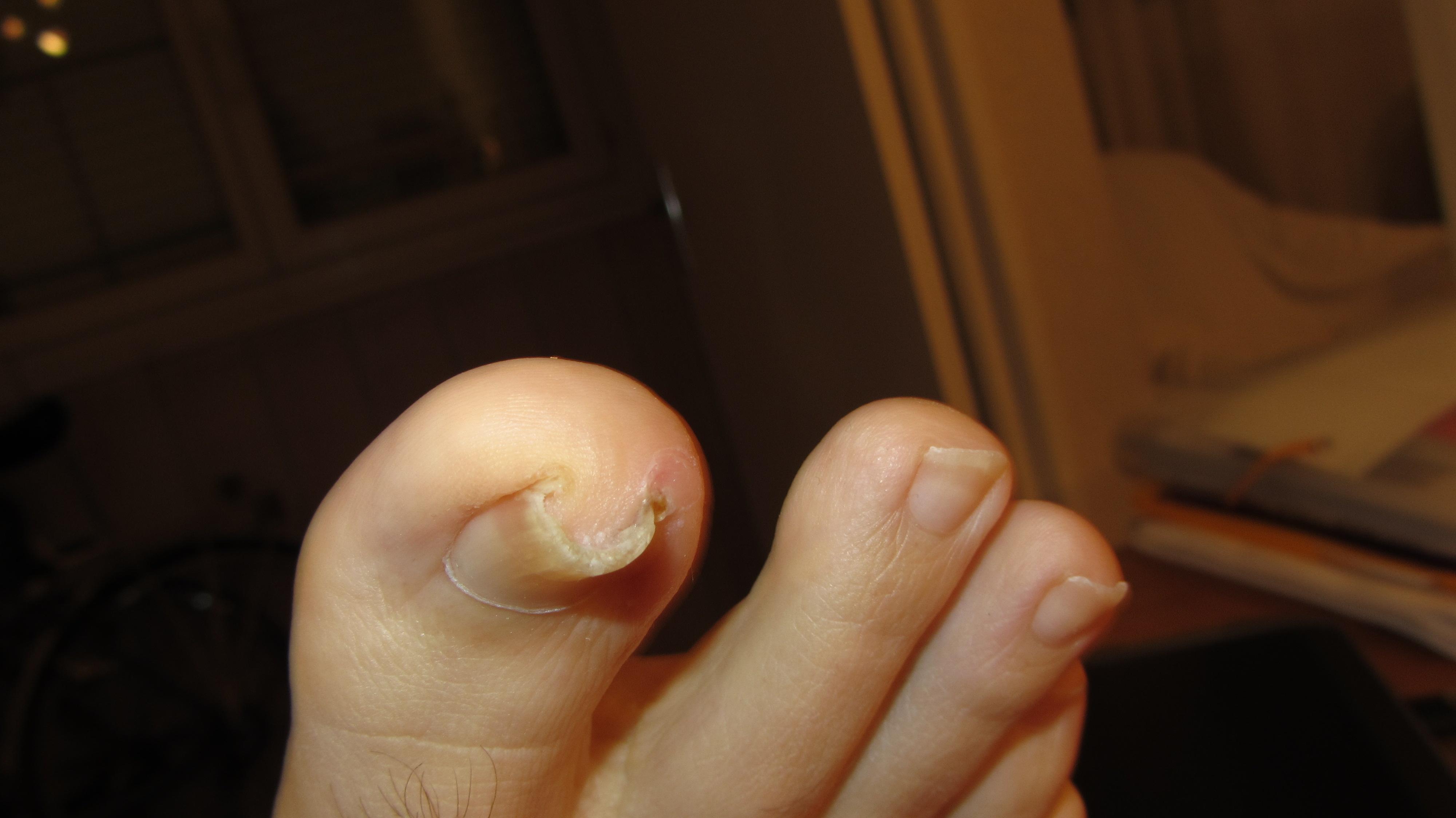 Une op ration de chirurgie esth tique ekkion - Coupe des ongles de pieds ...